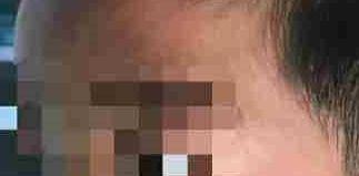 陕西一小学校长在学生脸上扎17个眼